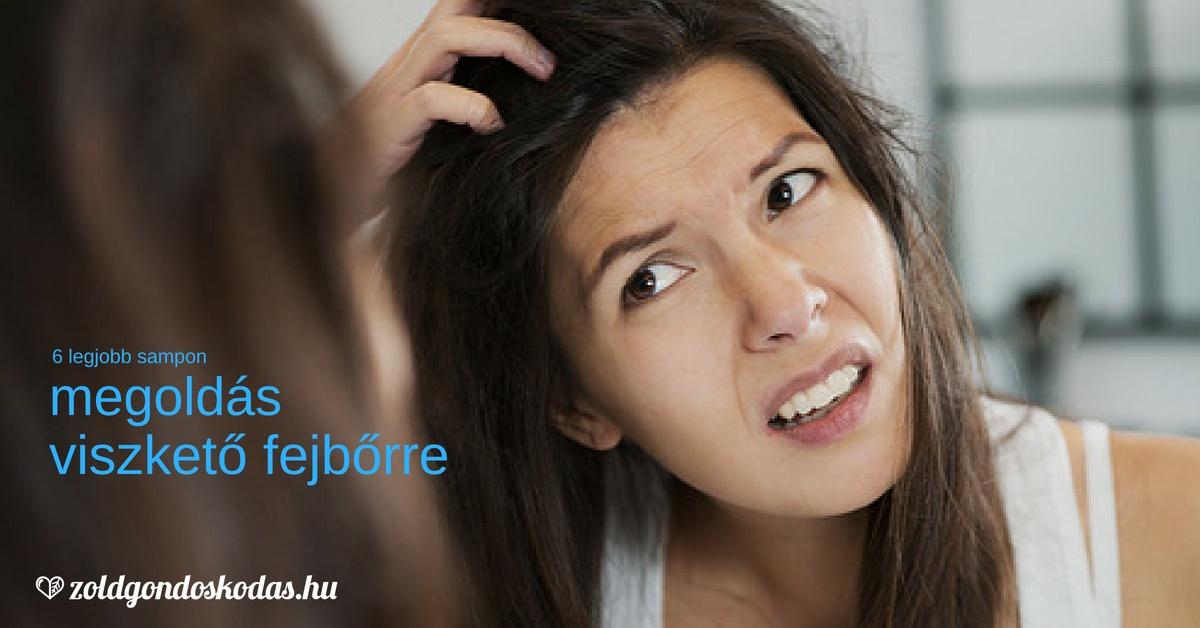 Megoldás és a legjobb samponok viszkető fejbőrre