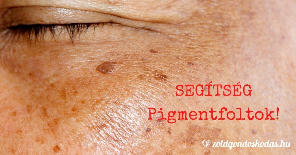 Pigmentfolt avagy öregségi folt eltüntetése, halványítása